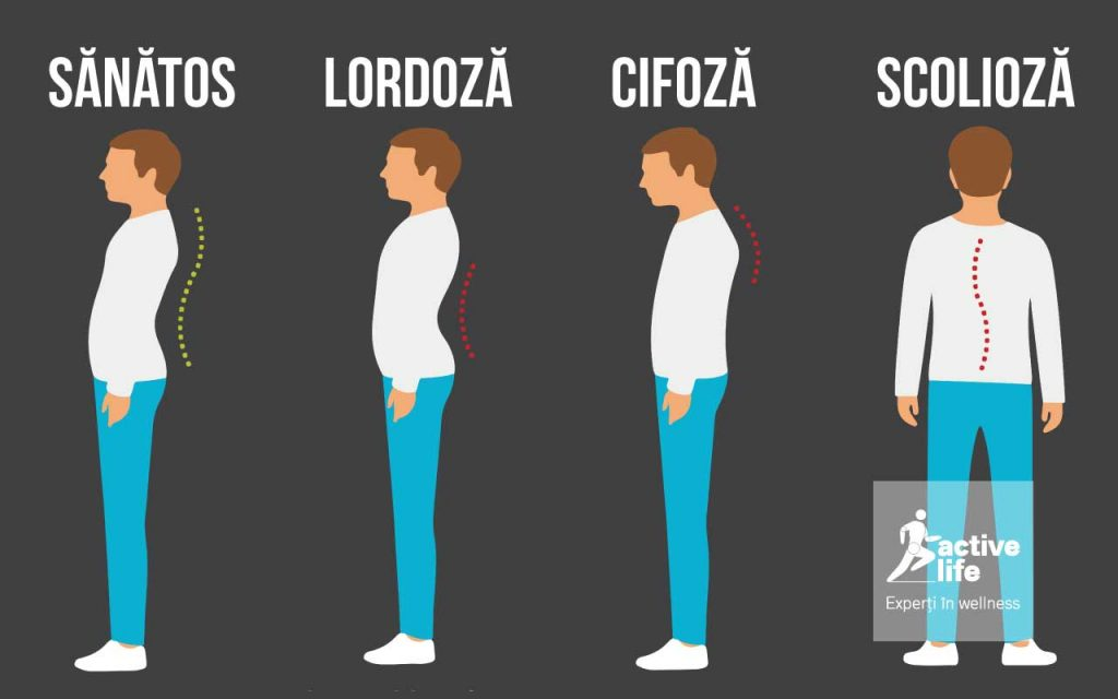 sanatos_lordoza_cifoza_scolioza_activelife